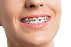 Ceramic Braces Vs. Metal Braces: The Comparison You Wanted to See