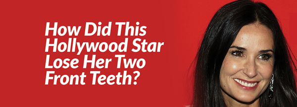 Hollywood Celebrities missing teeth