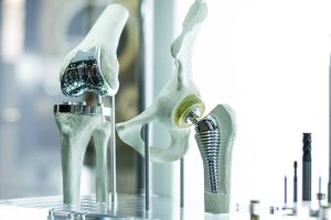 cremation recycling surgical implants